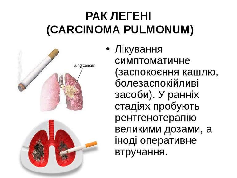 Лікування симптоматичне (заспокоєння кашлю, болезаспокійливі засоби). У ранні...