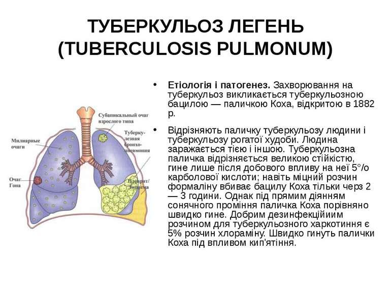 ТУБЕРКУЛЬОЗ ЛЕГЕНЬ (TUBERCULOSIS PULMONUM) Етіологія і патогенез. Захворюванн...
