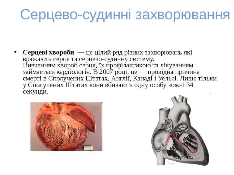 Серцево-судинні захворювання Серцеві хвороби— це цілий ряд різних захворюва...