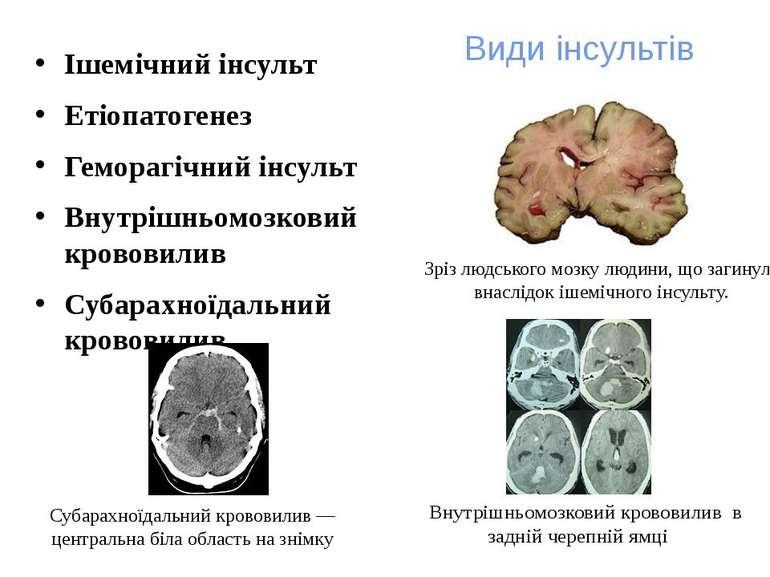 Види інсультів Ішемічний інсульт Етіопатогенез Геморагічний інсульт Внутрішнь...