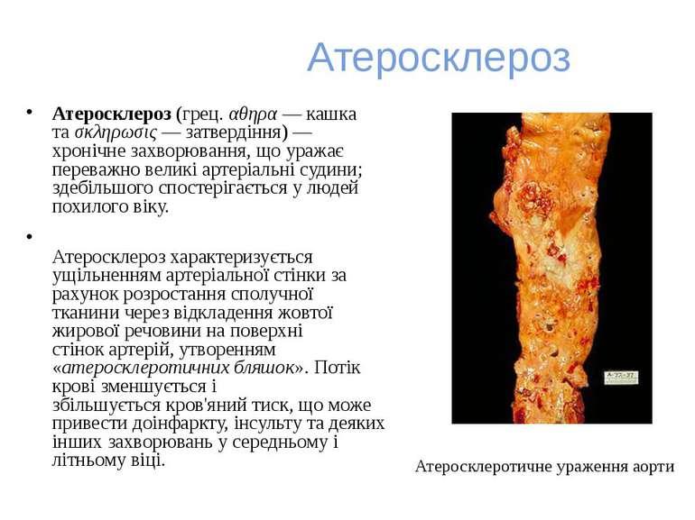 Атеросклероз Атеросклероз(грец.αθηρα— кашка таσκληρωσις— затвердіння) — ...