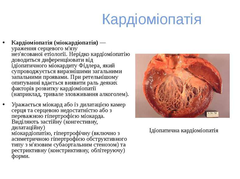 Кардіоміопатія Кардіоміопатія (міокардіопатія)— ураженнясерцевогом'язу нез...