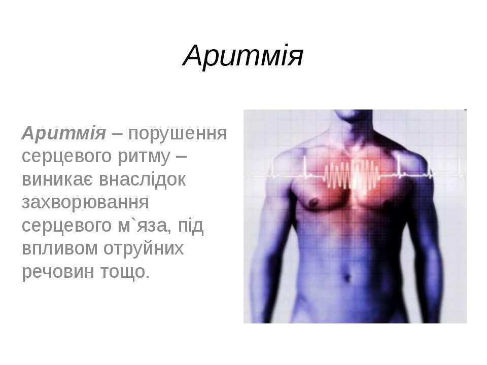 Аритмія Аритмія – порушення серцевого ритму – виникає внаслідок захворювання ...