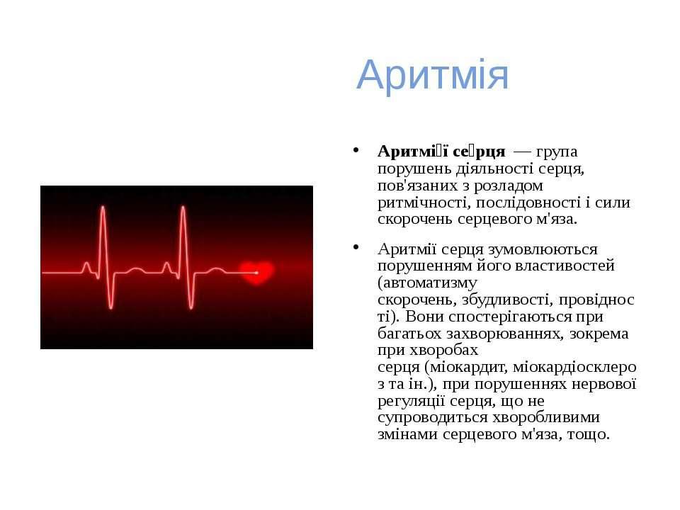 Аритмія Аритмі ї се рця— група порушень діяльностісерця, пов'язаних з розл...
