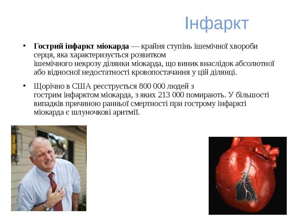 Інфаркт Гострий інфаркт міокарда— крайня ступіньішемічної хвороби серця, як...