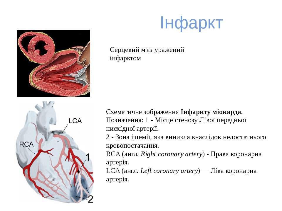 Інфаркт Схематичне зображенняІнфаркту міокарда. Позначення: 1 - Місце стеноз...