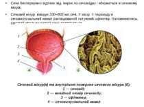 Сеча безперервно відтікає від нирок по сечоводах і збирається в сечовому міху...