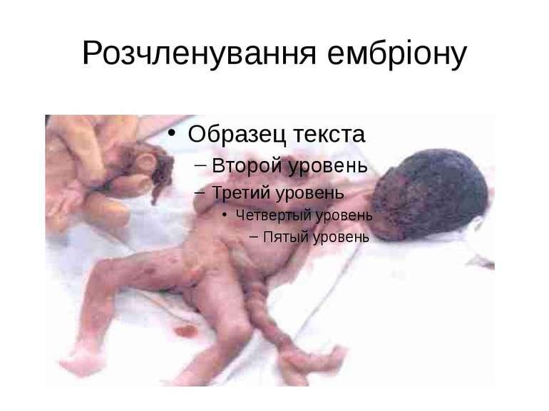 Розчленування ембріону