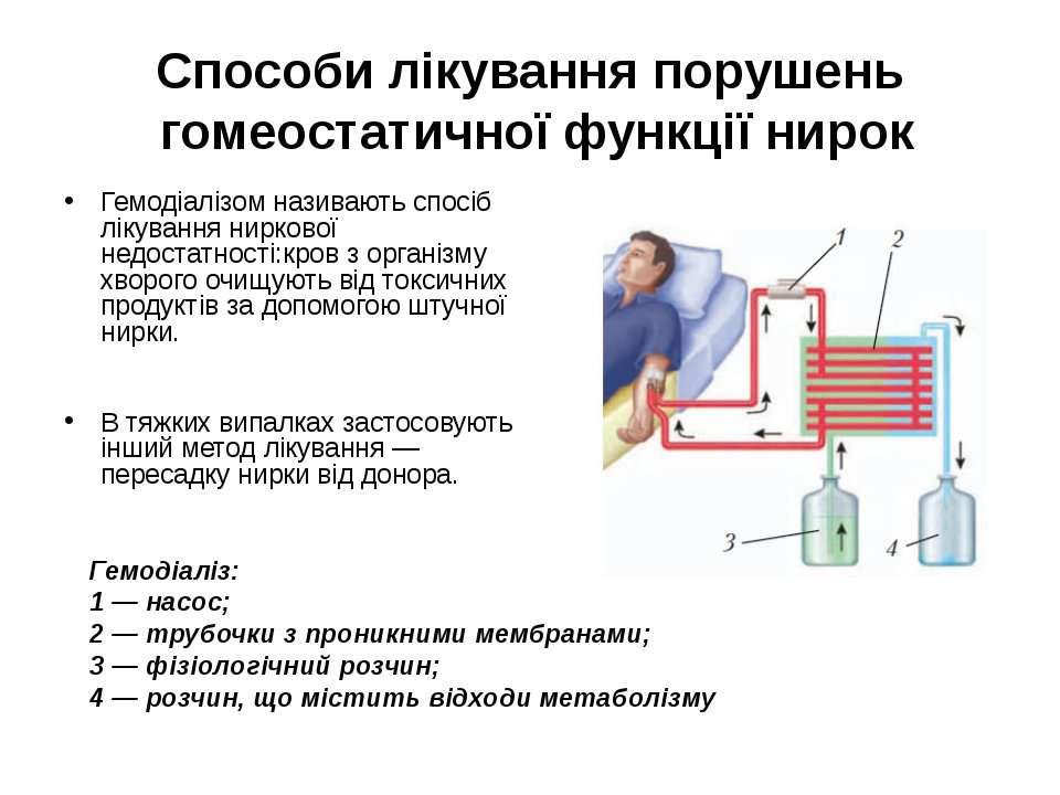 Способи лікування порушень гомеостатичної функції нирок Гемодіалізом називают...