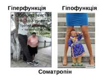 Гіперфункція Гіпофункція Соматропін Вплив гормона в дитинстві.