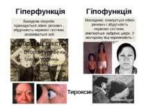 Гіперфункція Гіпофункція Базедова хвороба: підвищується обмін речовин , збудл...