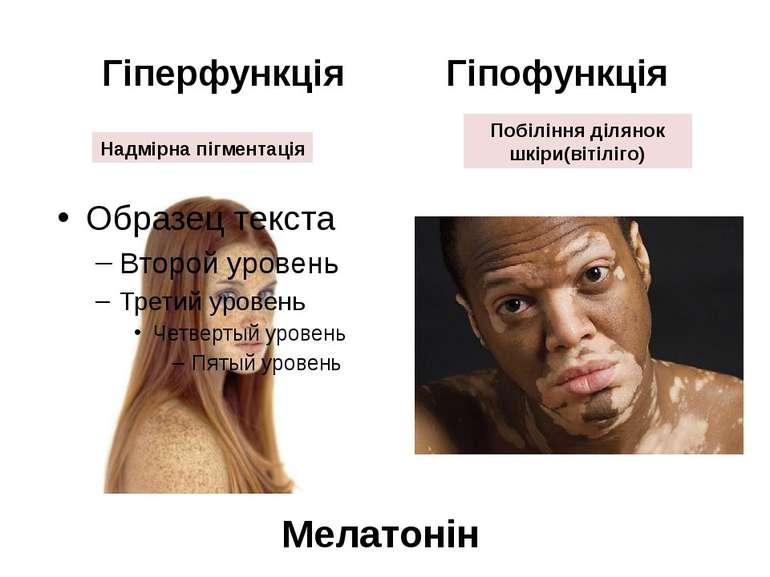 Гіперфункція Гіпофункція Надмірна пігментація Побіління ділянок шкіри(вітіліг...