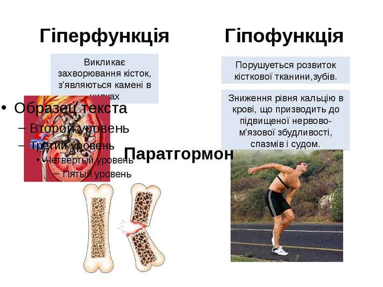 Гіперфункція Гіпофункція Викликає захворювання кісток, з'являються камені в н...