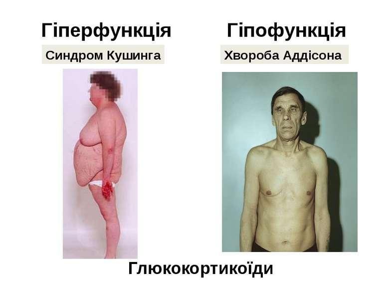 Гіперфункція Гіпофункція Синдром Кушинга Хвороба Аддісона Глюкокортикоїди Хво...