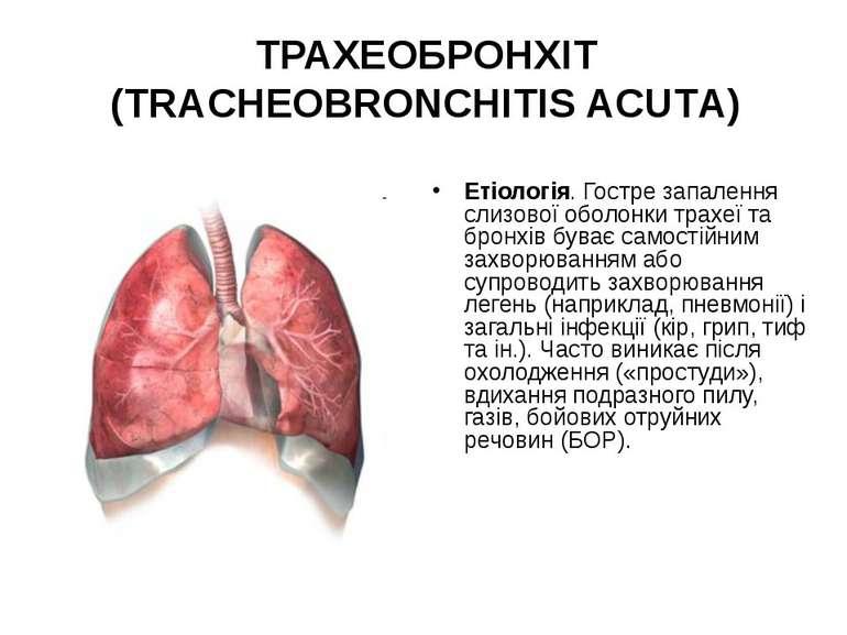 ТРАХЕОБРОНХІТ (TRACHEOBRONCHITIS ACUTА) Етіологія. Гостре запалення слизової ...