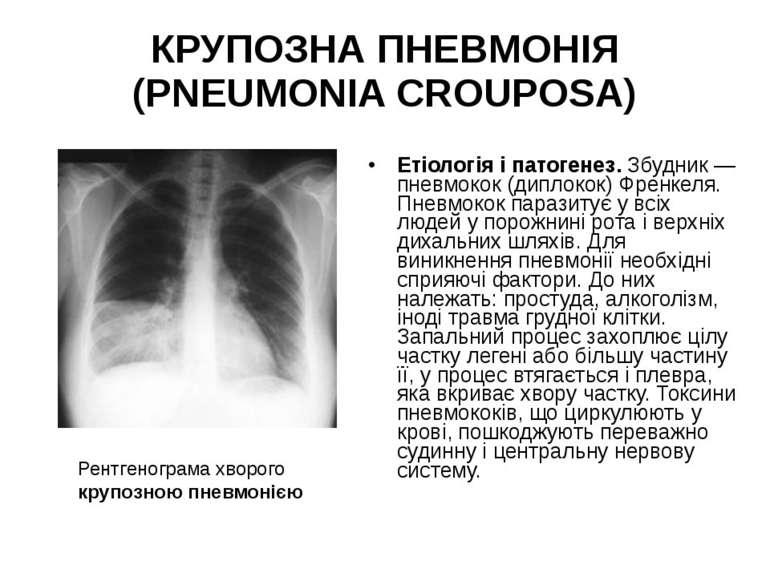 КРУПОЗНА ПНЕВМОНІЯ (PNEUMONIA CROUPOSA) Етіологія і патогенез. Збудник — пнев...