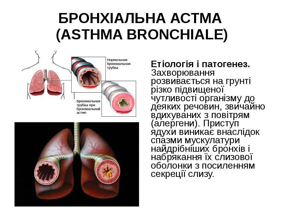 БРОНХІАЛЬНА АСТМА (ASTHMA BRONCHIALE) Етіологія і патогенез. Захворювання роз...