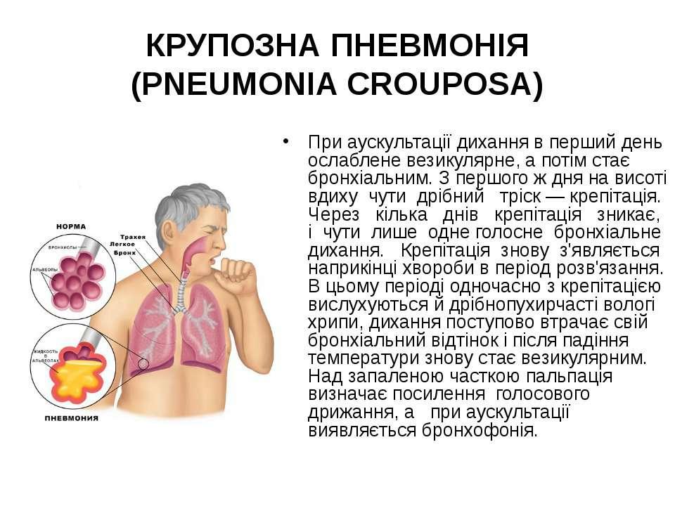 При аускультації дихання в перший день ослаблене везикулярне, а потім стає бр...