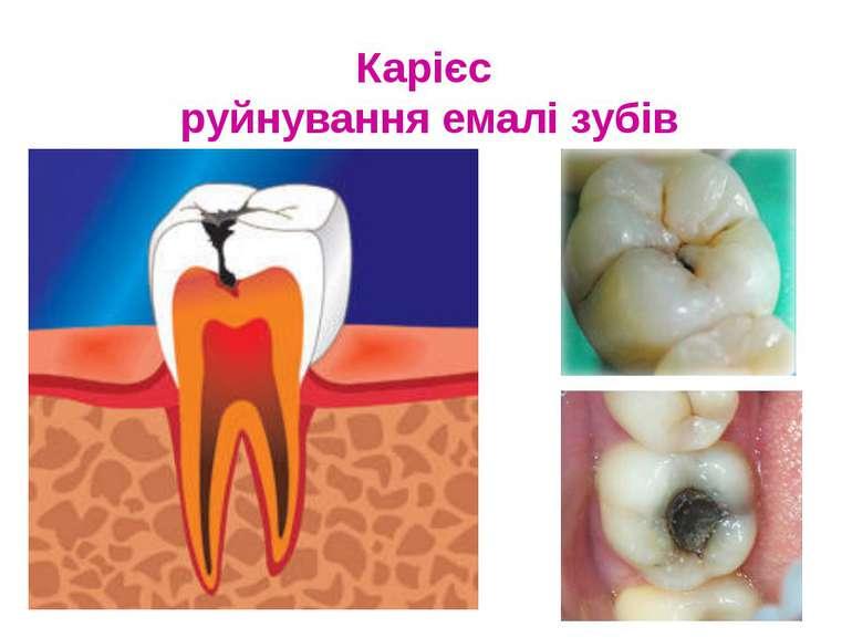 Карієс руйнування емалі зубів