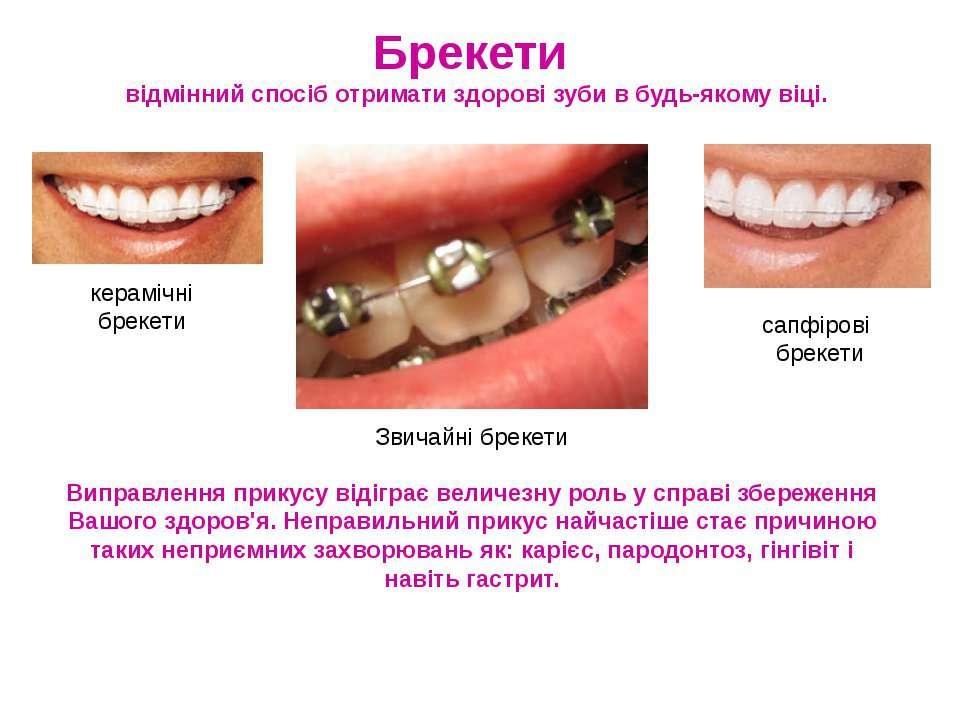 Брекети відмінний спосіб отримати здорові зуби в будь-якому віці. Виправлення...