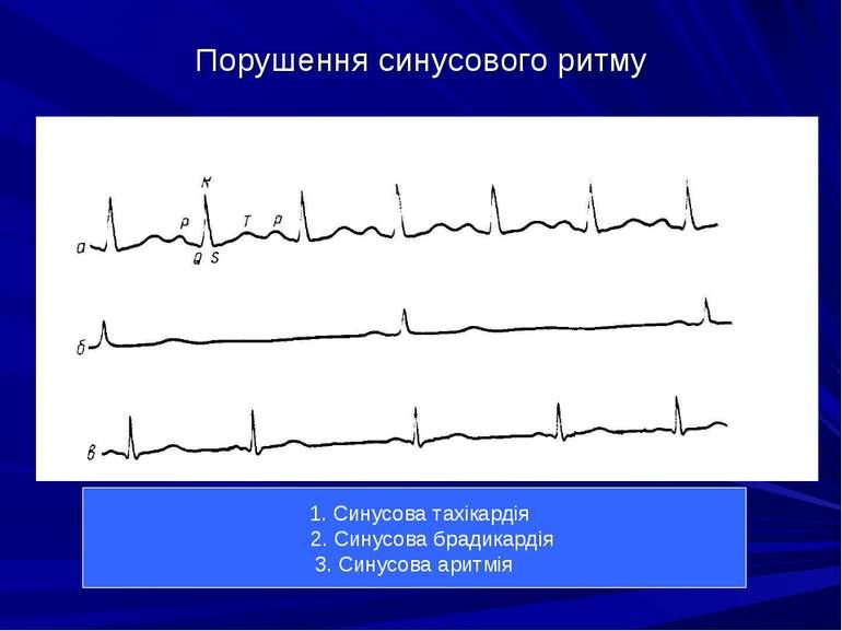 Порушення синусового ритму 1. Синусова тахікардія 2. Синусова брадикардія 3. ...