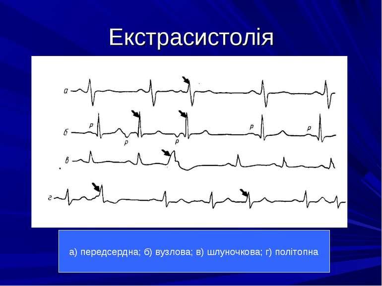 Екстрасистолія а) передсердна; б) вузлова; в) шлуночкова; г) політопна