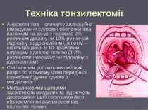 Техніка тонзилектомії Анестезія зіва – спочатку аплікаційна (змащування слизо...