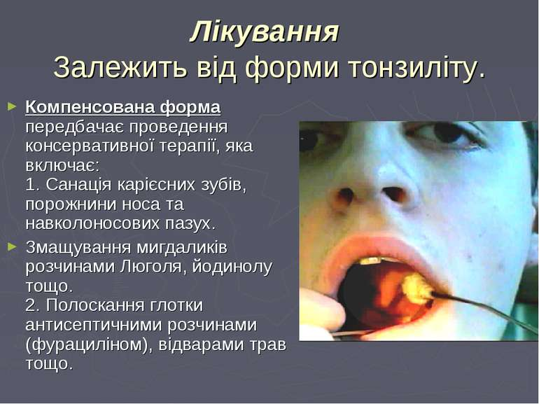 Лікування Залежить від форми тонзиліту. Компенсована форма передбачає проведе...