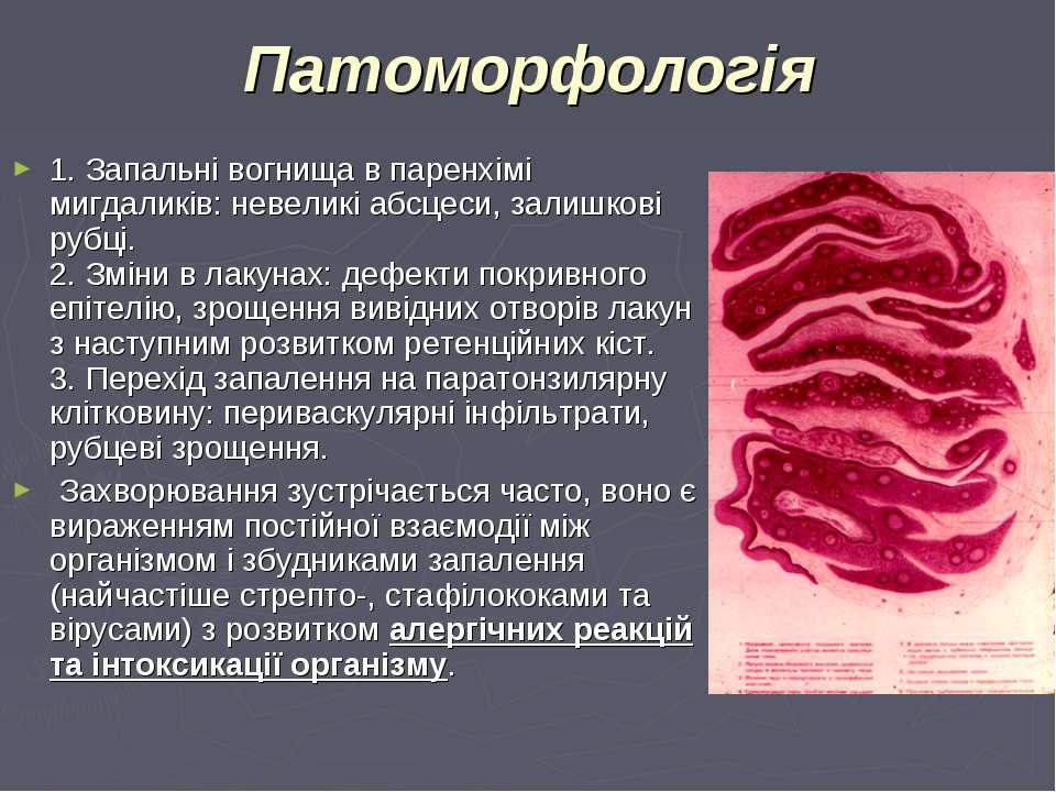 Патоморфологія 1. Запальні вогнища в паренхімі мигдаликів: невеликі абсцеси, ...