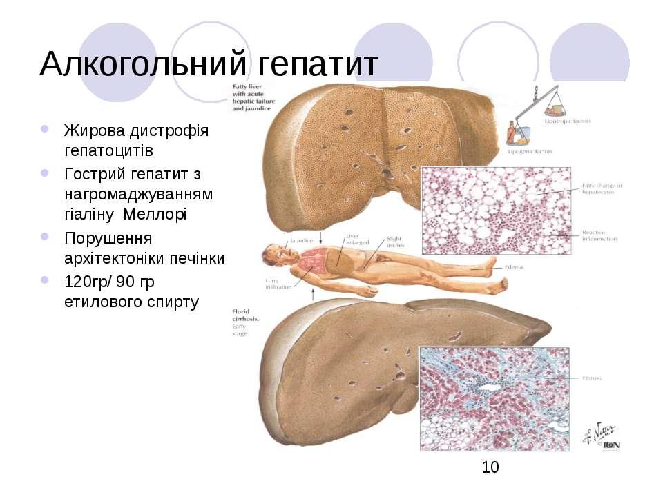 Алкогольний гепатит Жирова дистрофія гепатоцитів Гострий гепатит з нагромаджу...