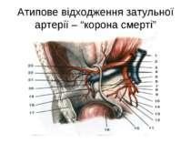 """Атипове відходження затульної артерії – """"корона смерті"""""""