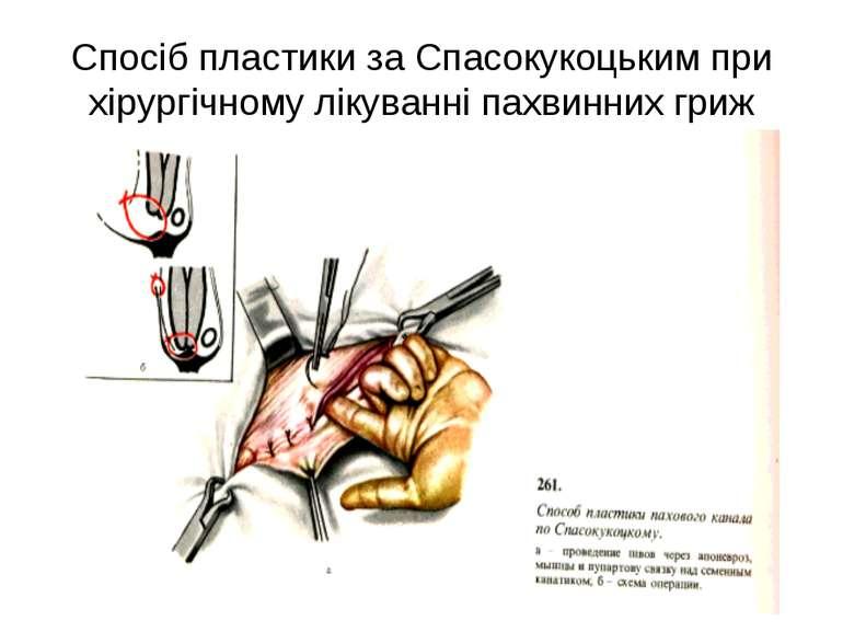 Спосіб пластики за Спасокукоцьким при хірургічному лікуванні пахвинних гриж