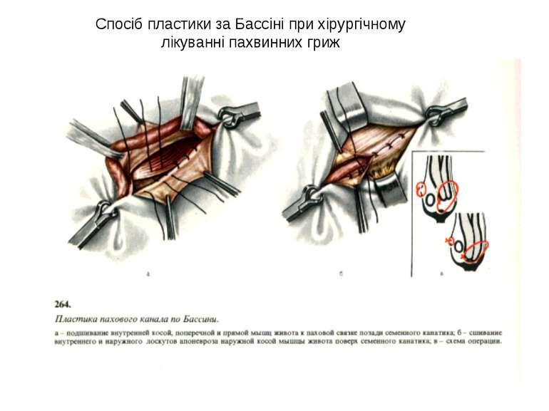 Спосіб пластики за Бассіні при хірургічному лікуванні пахвинних гриж