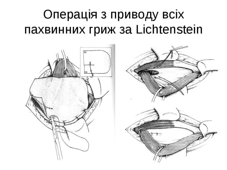 Операція з приводу всіх пахвинних гриж за Lichtenstein