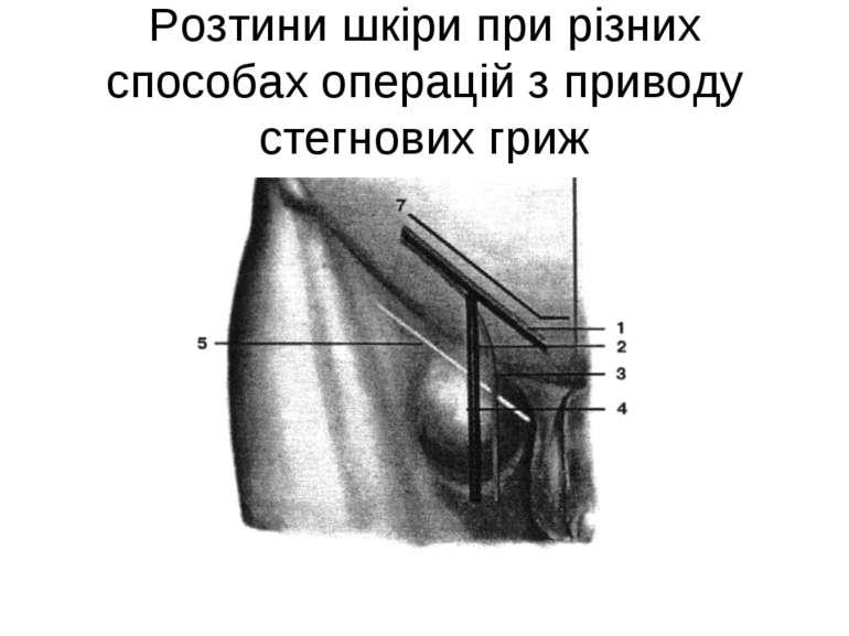 Розтини шкіри при різних способах операцій з приводу стегнових гриж