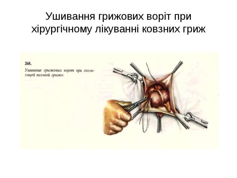 Ушивання грижових воріт при хірургічному лікуванні ковзних гриж