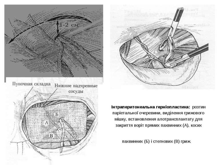 Інтраперитонеальна герніопластика: розтин паріетальної очеревини, виділення г...