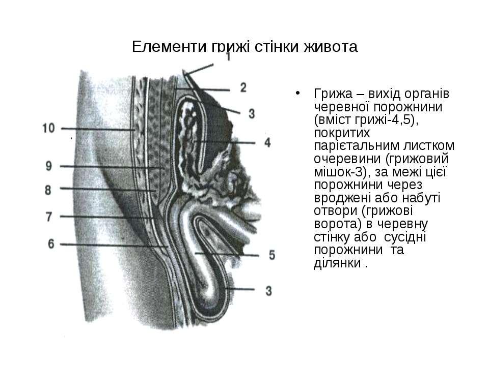 Елементи грижі стінки живота Грижа – вихід органів черевної порожнини (вміст ...