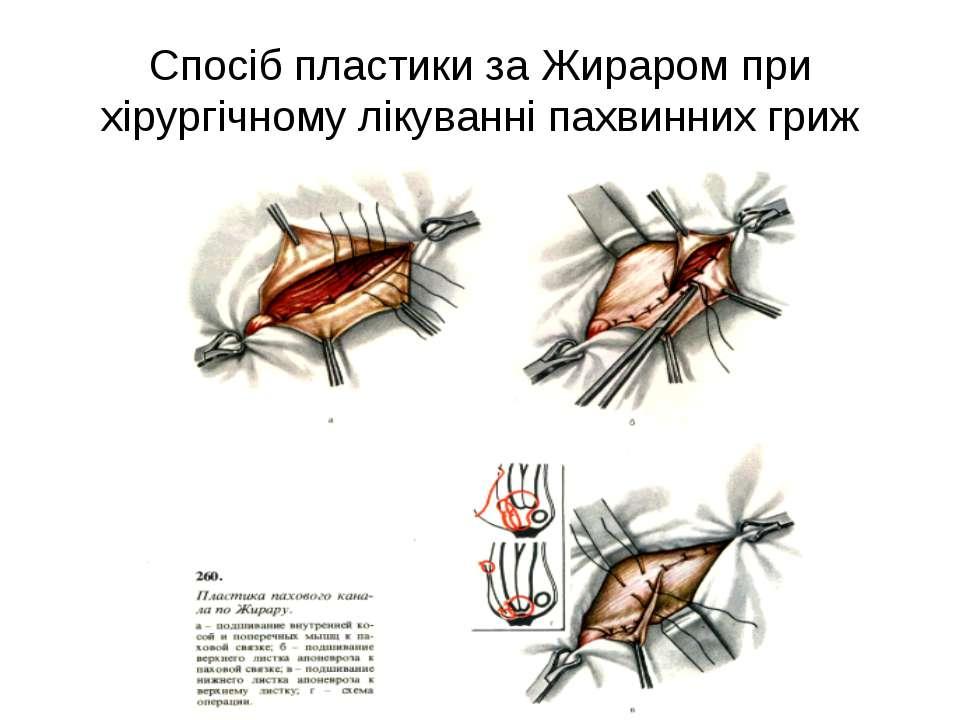 Спосіб пластики за Жираром при хірургічному лікуванні пахвинних гриж