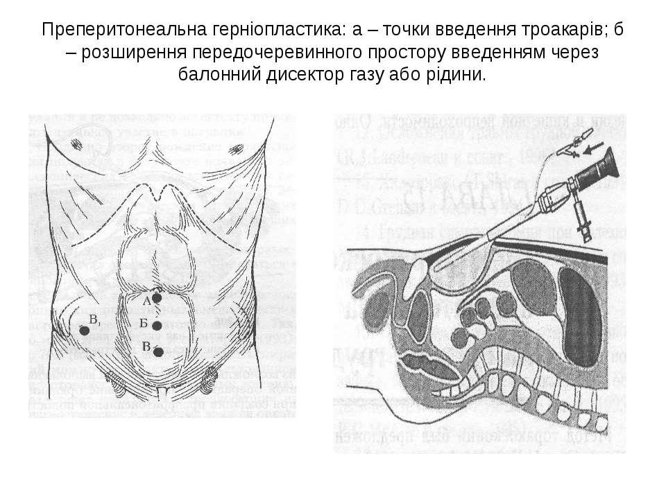 Преперитонеальна герніопластика: а – точки введення троакарів; б – розширення...