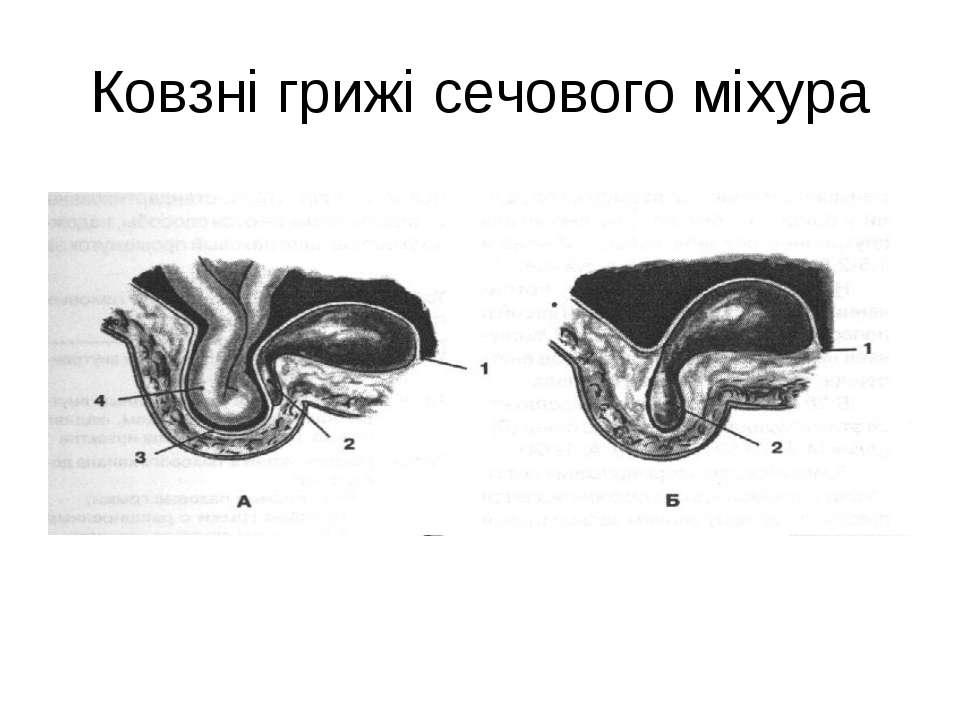 Ковзні грижі сечового міхура