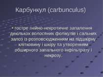Карбункул (carbunculus) гостре гнійно-некротичне запалення декількох волосяни...