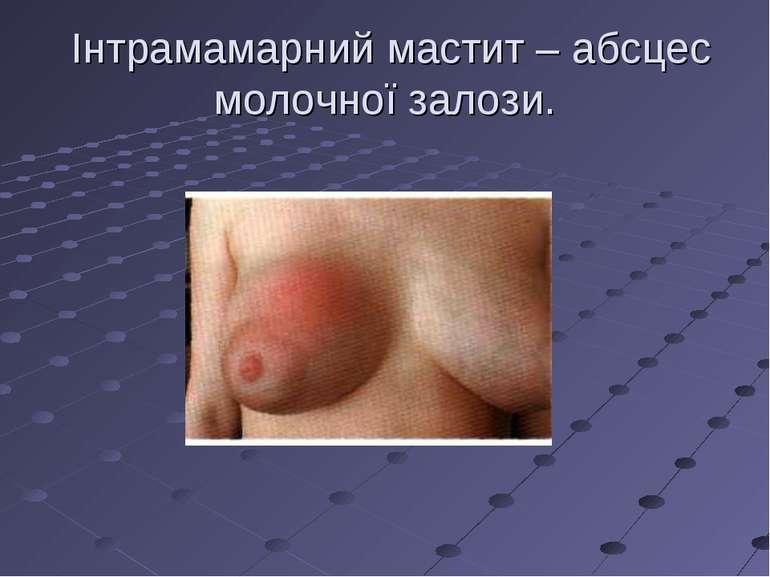 Інтрамамарний мастит – абсцес молочної залози.