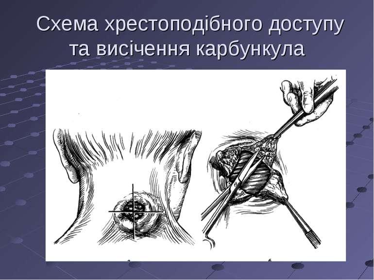 Схема хрестоподібного доступу та висічення карбункула
