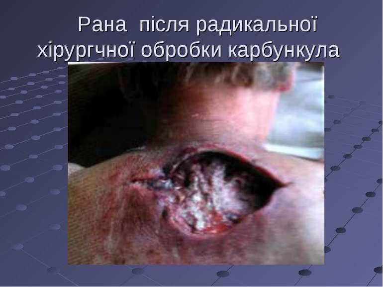 Рана після радикальної хірургчної обробки карбункула