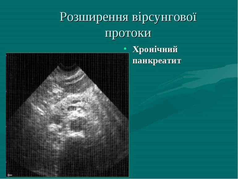 Розширення вiрсунгової протоки Хронiчний панкреатит