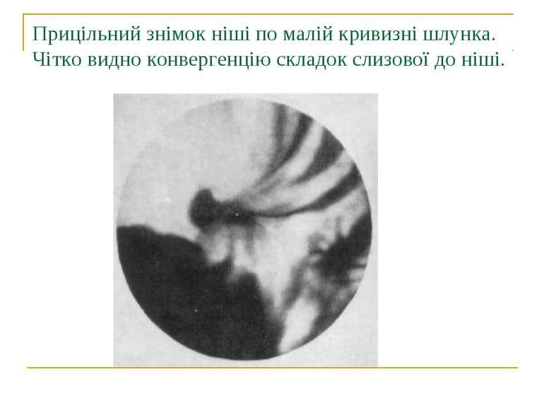 Прицільний знімок ніші по малій кривизні шлунка. Чітко видно конвергенцію скл...