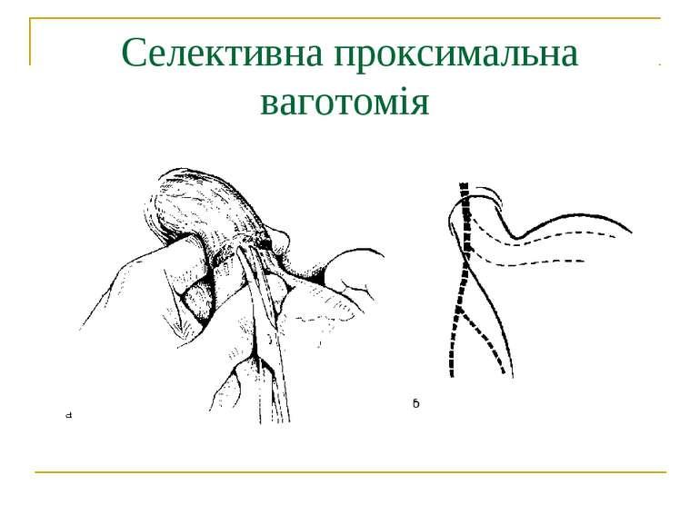 Селективна проксимальна ваготомія