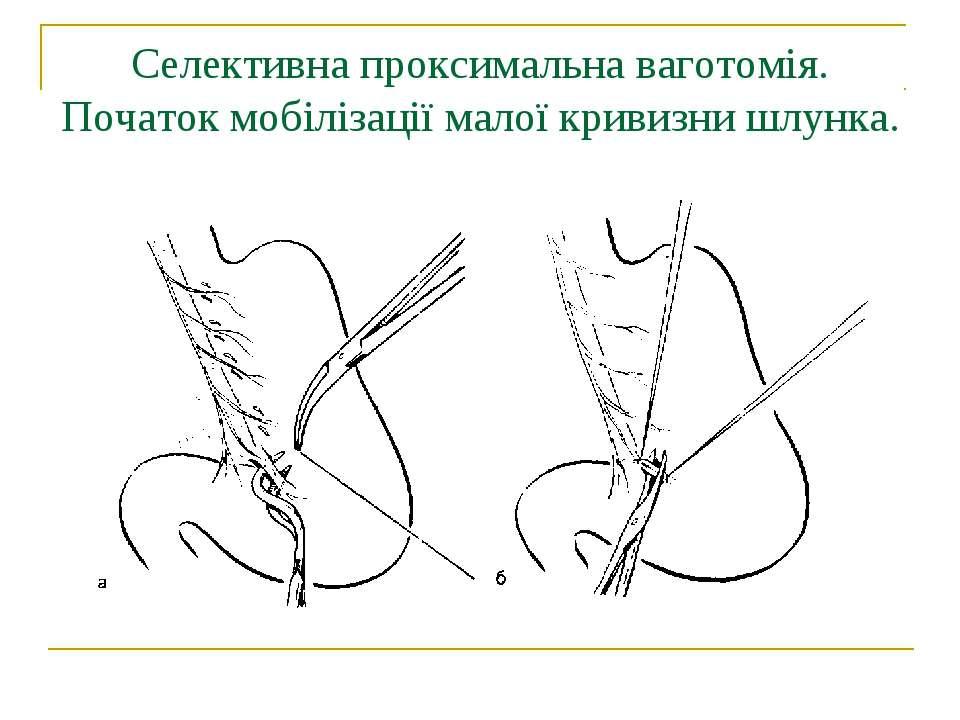 Селективна проксимальна ваготомія. Початок мобілізації малої кривизни шлунка.