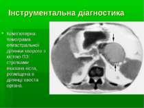 Інструментальна діагностика Комп'ютерна томограма епігастральної ділянки хвор...